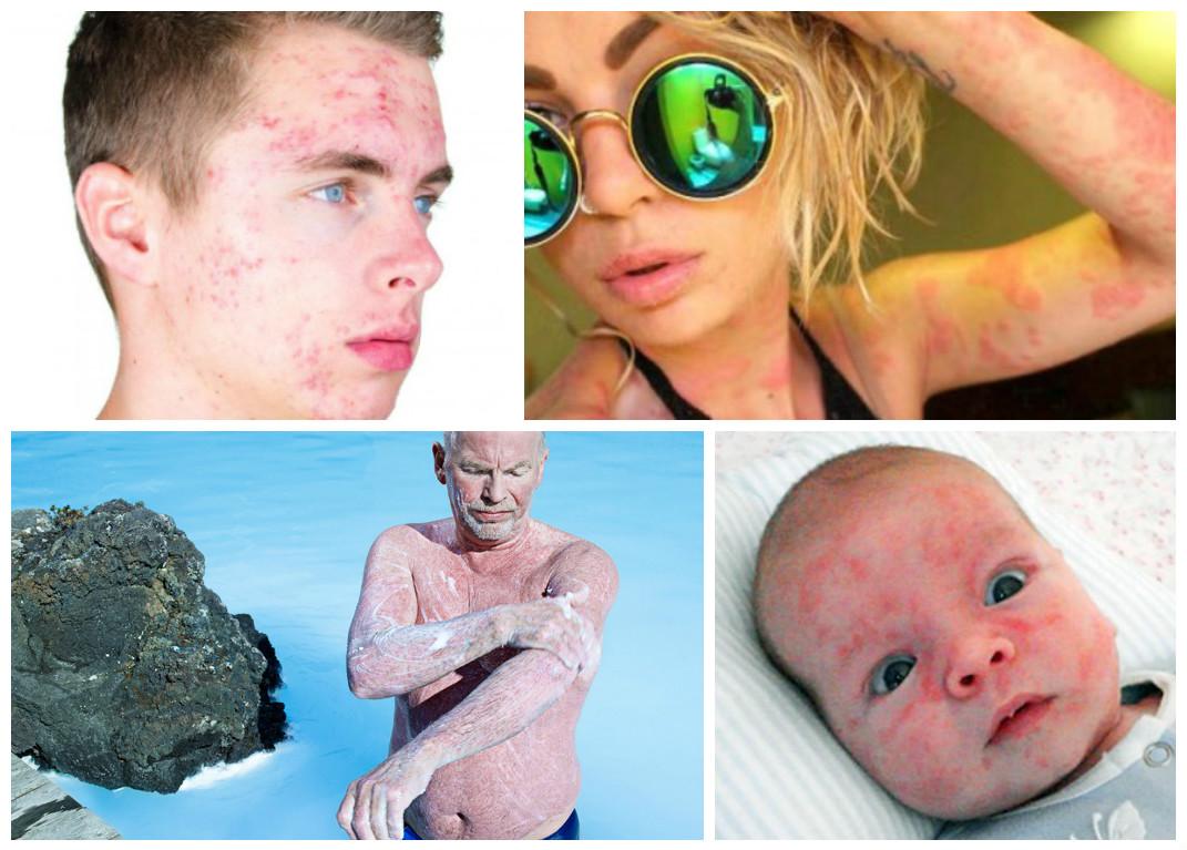 псориаз, лечение псориаза, лечение псориаза на мертвом море, мертвое море псориаз
