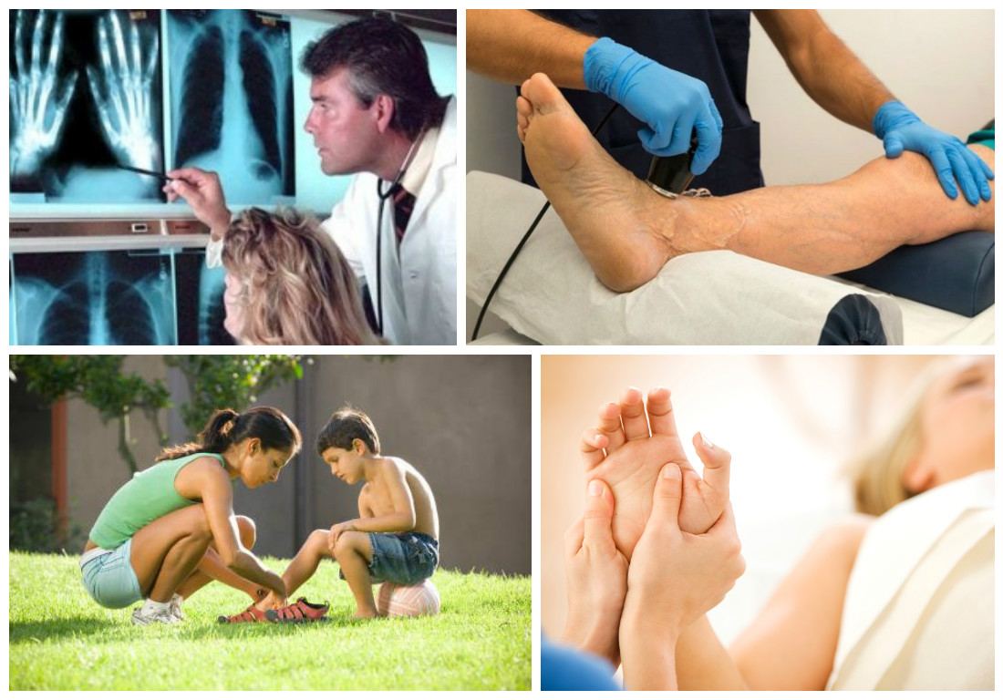 лечение ревматоидного артрита в израиле