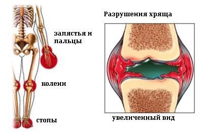 ювенильный ревматоидный артрит