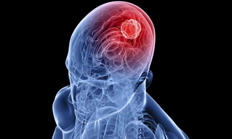 Диагностика опухолей головного мозга